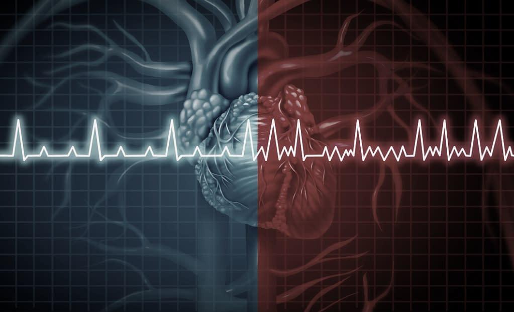A normal heart rhythm compared to a heart rhythm with AFib.