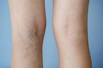 A picture of Varicose Veins