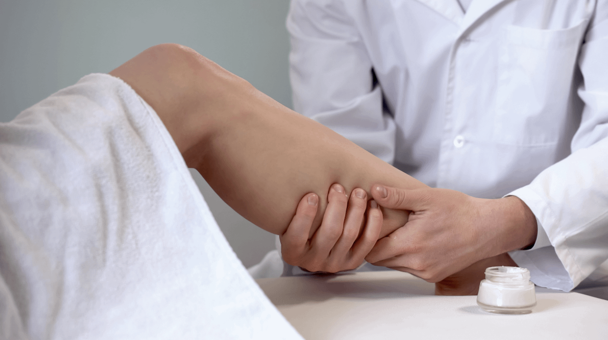 Varicose Vein evaluation by doctor